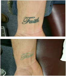 laser snow first treatment tattoo removal